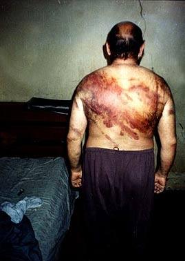 Fotos de tortura en irak 98